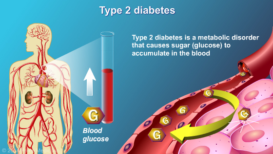 Management and Treatment of Type 2 Diabetes - Slide Show - 3