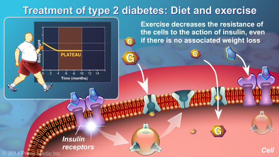 Management and Treatment of Type 2 Diabetes - Slide Show - 6