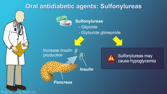 Management and Treatment of Type 2 Diabetes - Slide Show - 11
