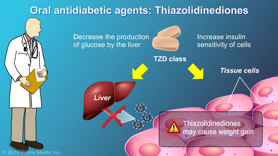 Management and Treatment of Type 2 Diabetes - Slide Show - 17