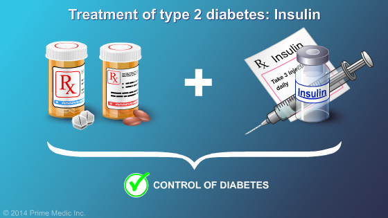 Management and Treatment of Type 2 Diabetes - Slide Show - 20