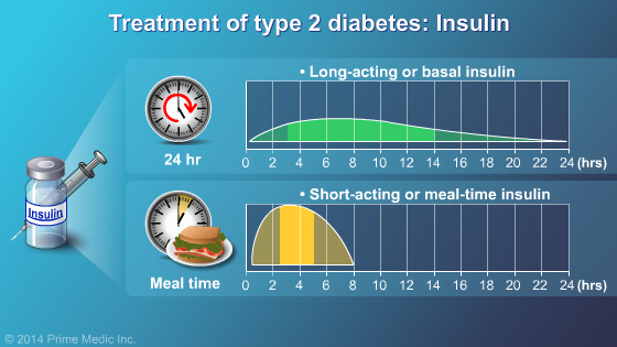 Management and Treatment of Type 2 Diabetes - Slide Show - 21