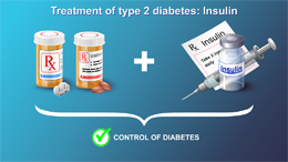 Management and Treatment of Type 2 Diabetes - Animation